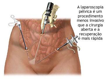Laparoscopia - Cirurgia para retirada de Calculo Renal